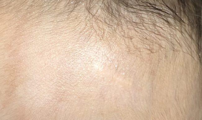 6カ月後の傷跡